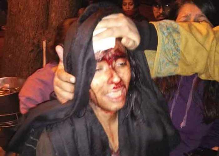 JNU Brawl injured student 5jan20