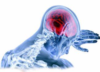 Brain Complications